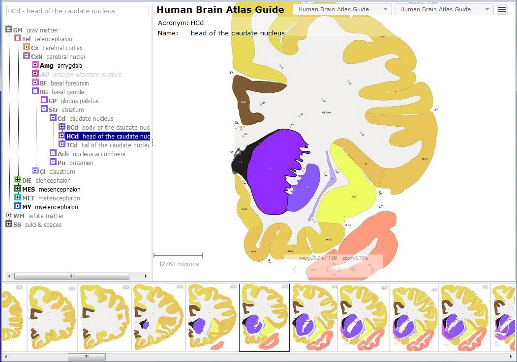 Allen Human Brain Atlas - Allen Reference Atlas Viewer ...